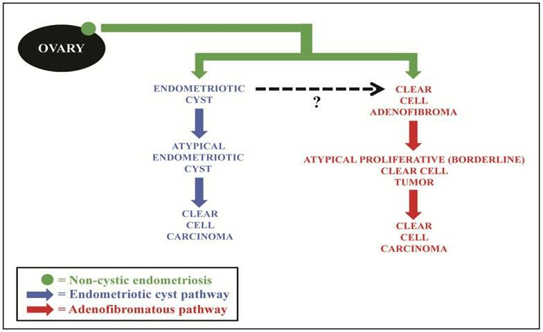 benign cancer and endometriosis