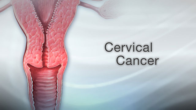 genital warts and cervical cancer)