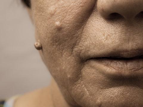 hpv skin face)