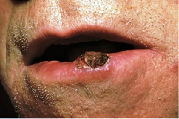 papilloma a cellule squamose