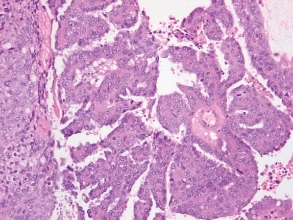 cancerul limfatic se transmite