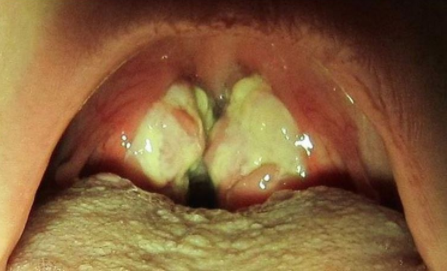 hpv mouth kissing)