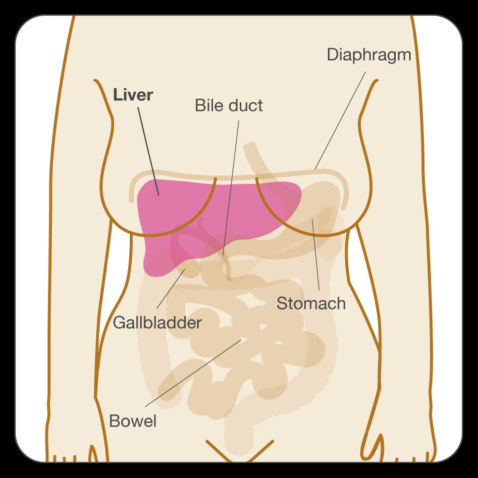 helminth disease epidemiology