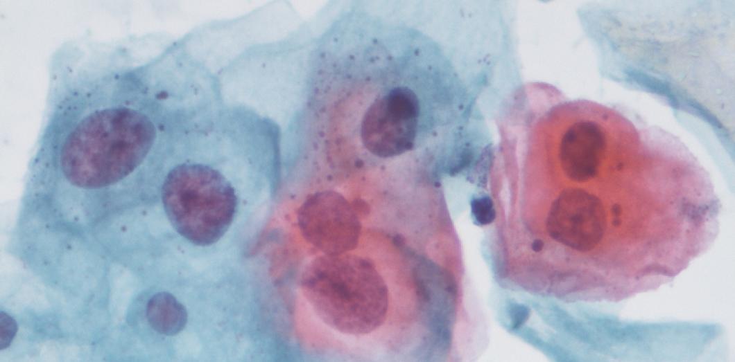 Ajuta-ti organismul sa elimine virusul care produce cancerul de col