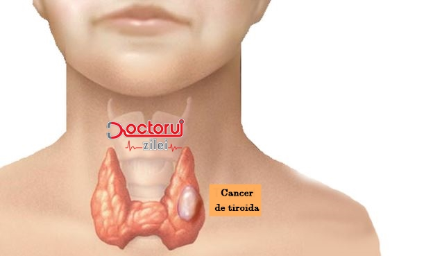 simptomele cancerului de tiroida)