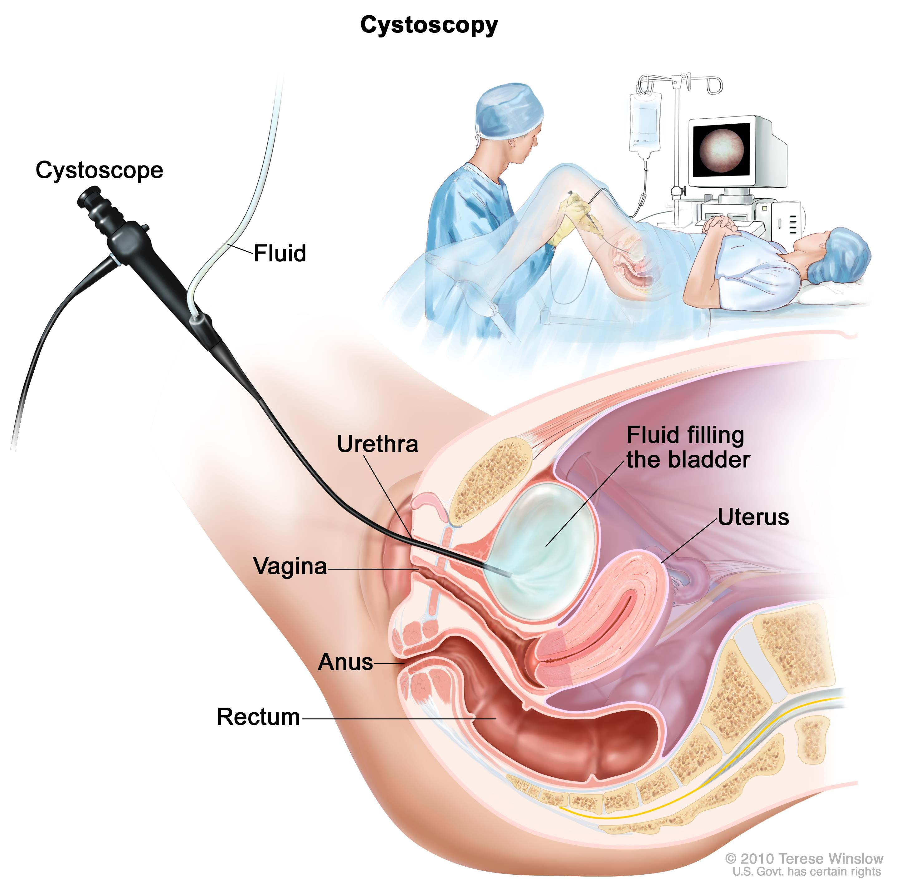 Acute and Chronic Interstitial Cystitis