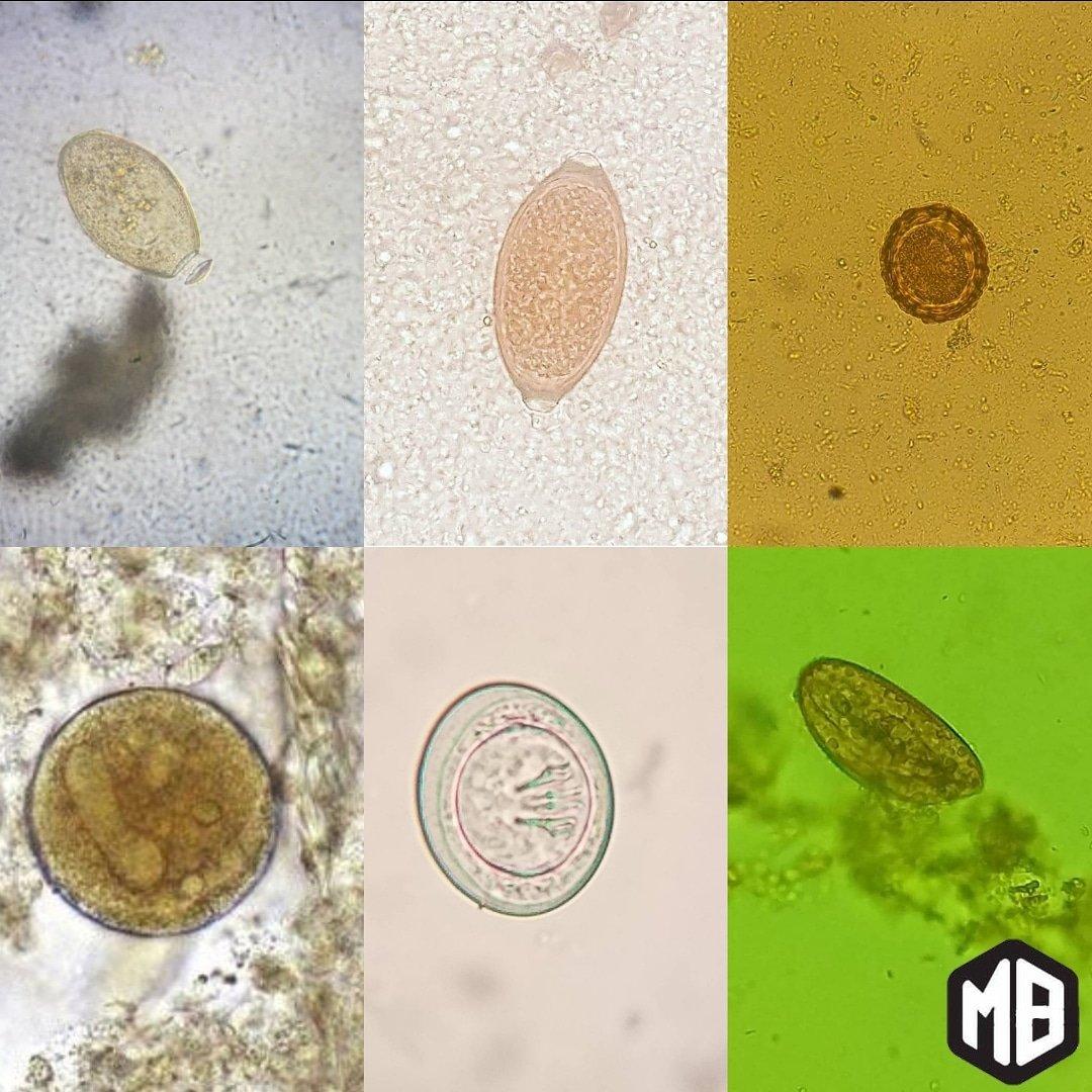 enterobius vermicularis quiste