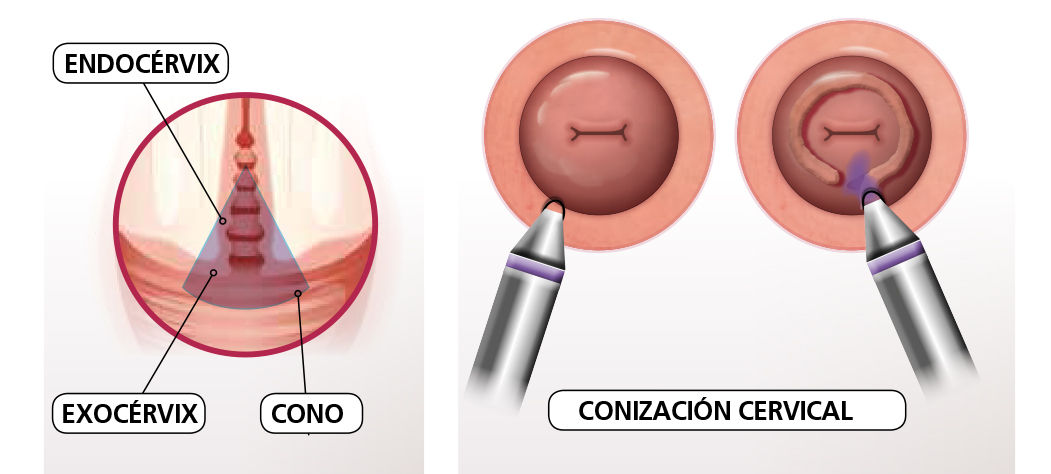 lesion in cervix hpv