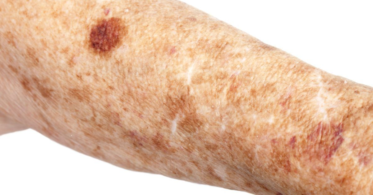 warts on skin in old age)