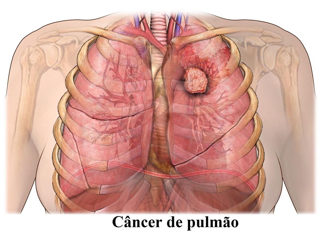 cancer pulmonar con metastasis