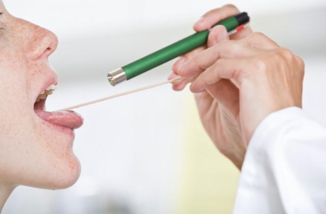 cancer orofaringe tratamento