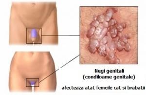 simptome virusul papiloma uman