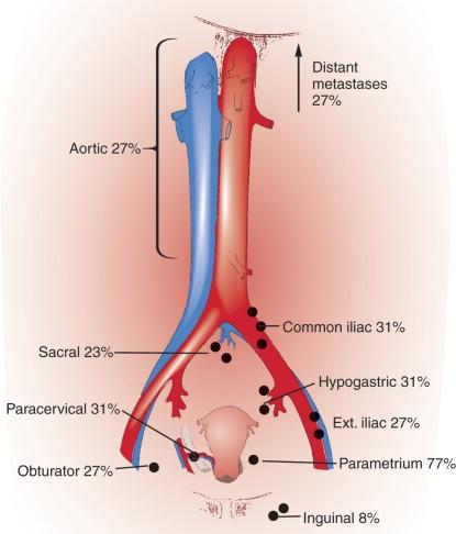 cervical cancer and lymph nodes