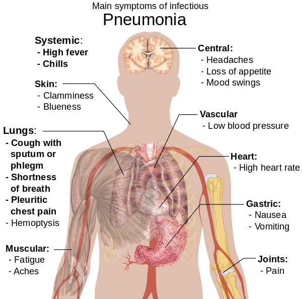 Cancerul la copii: primele simptome - Totul Despre Mame