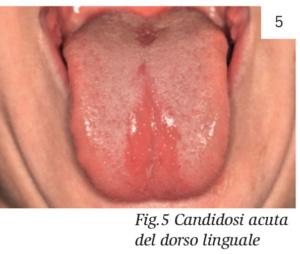 papilloma tonsille cura)