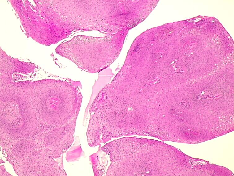 condyloma acuminata pathology outlines