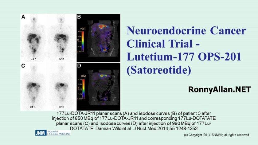 neuroendocrine cancer keytruda