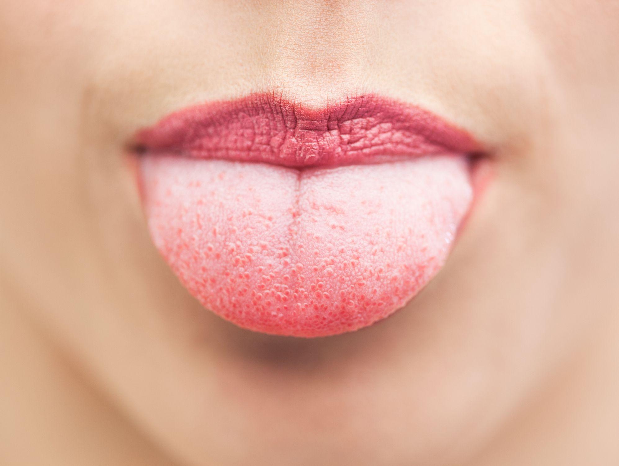 inflammation of tongue papillae