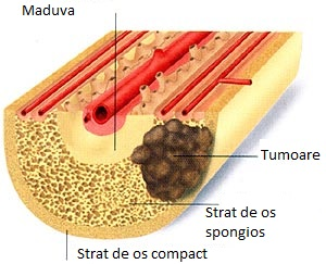cancer osos secundar simptome)