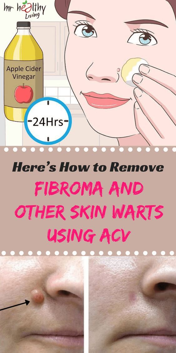 Pin by Nicoleta on health life | Get rid of warts, Skin tag removal, Warts remedy