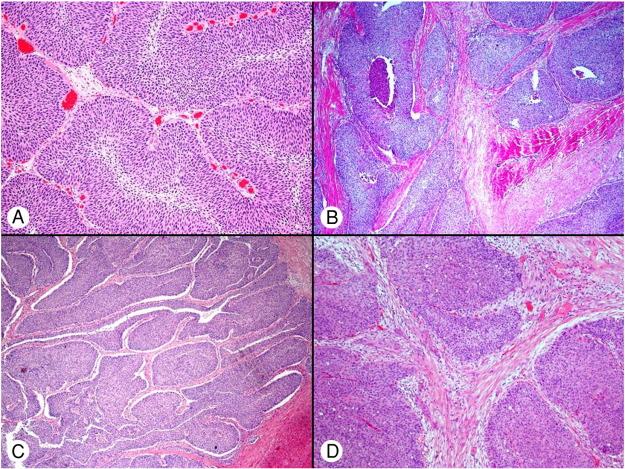 inverted papillary urothelial carcinoma