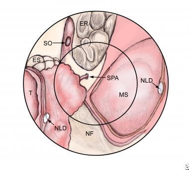inverted papilloma treatment medscape)