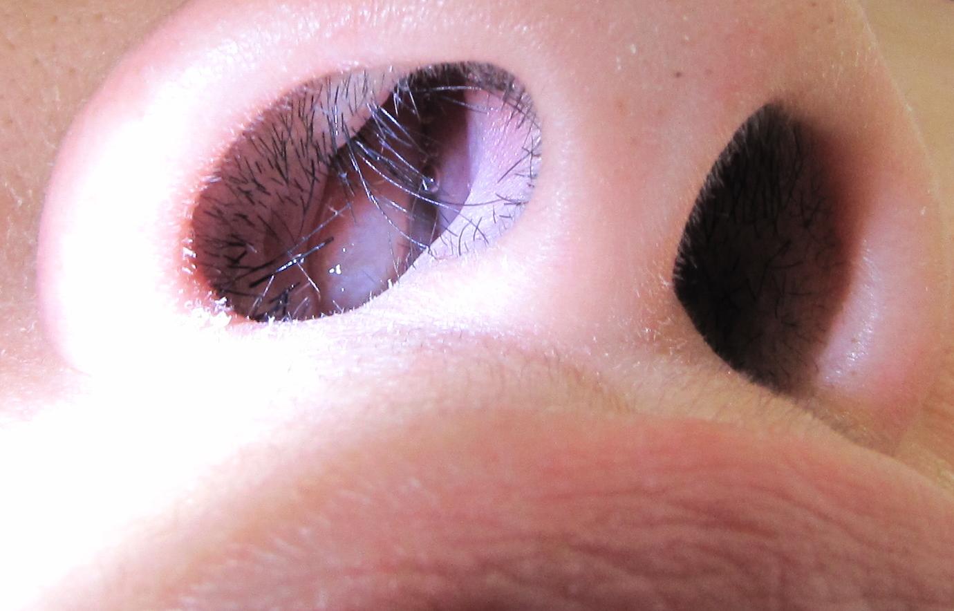 define nasal papilloma