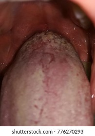 wart tongue white)
