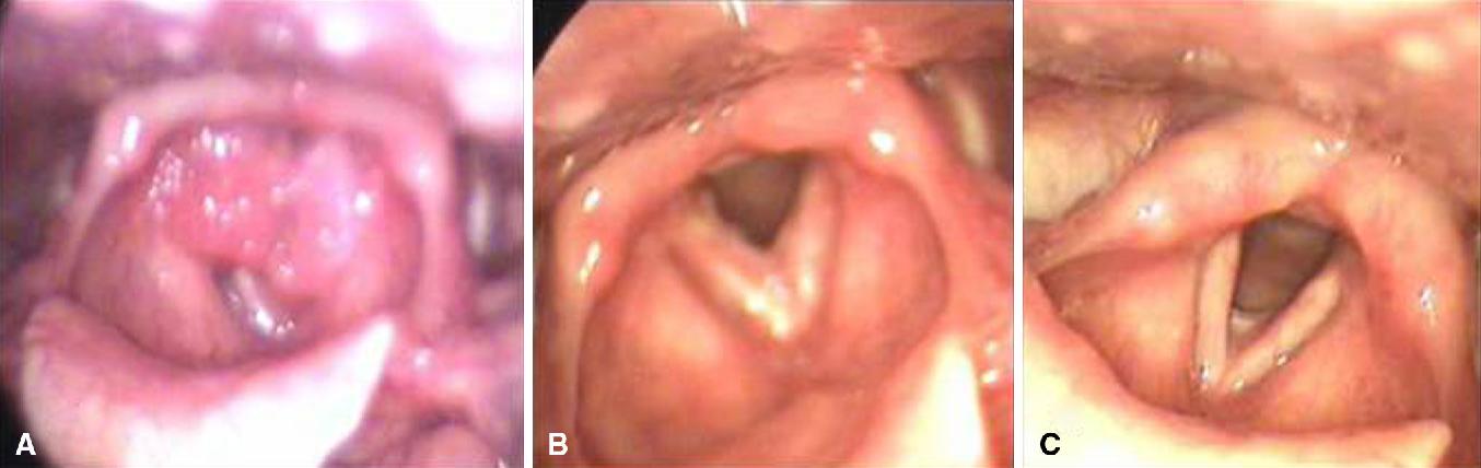 juvenile onset respiratory papillomatosis)