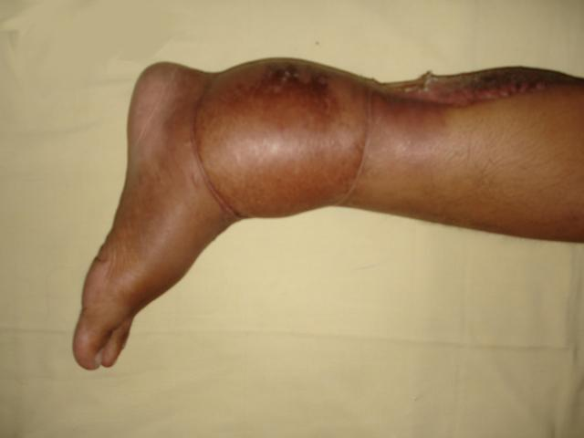 sarcoma cancer in ankle)
