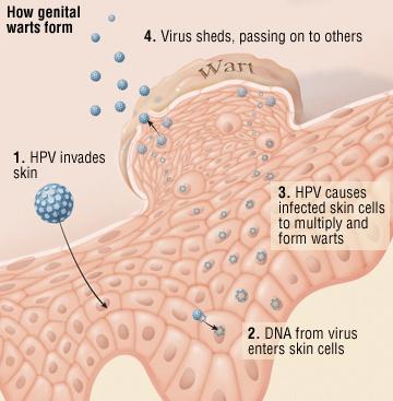 human papillomavirus infection on face