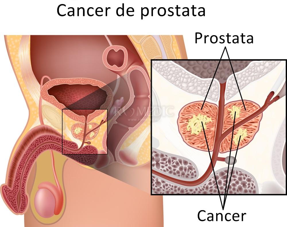 cancerul de prostata tratament