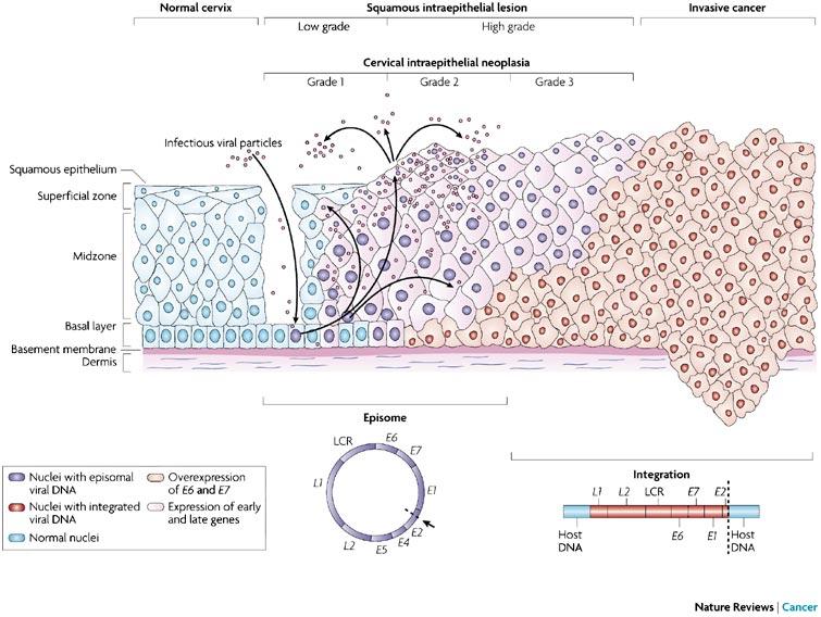 papilloma squamoso cervice)