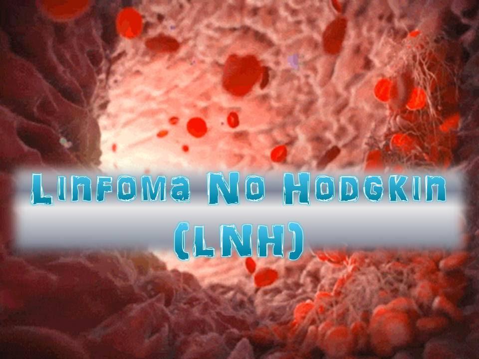 cancer no hodgkin se cura)