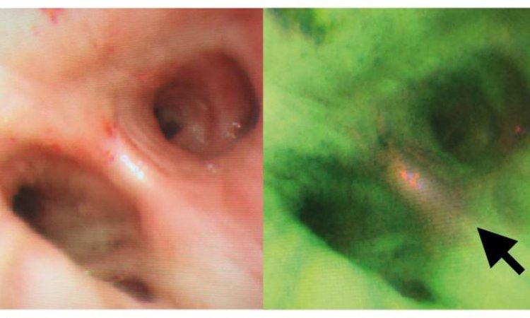 hiv anonim test vestibular papillae vs hpv