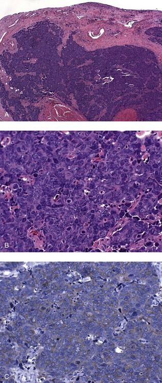 bladder inverted papilloma follow up