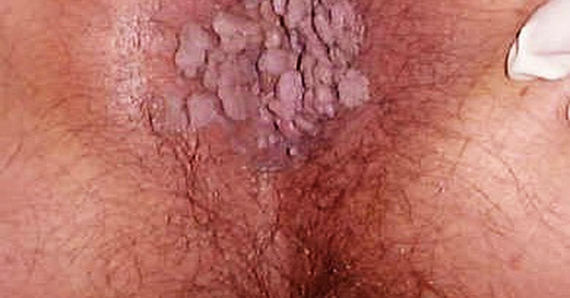 papilloma genitale femminile)