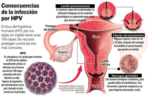 virus papiloma humano mujer consecuencias