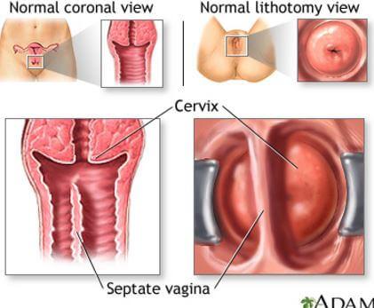 treatment of vestibular papillomatosis