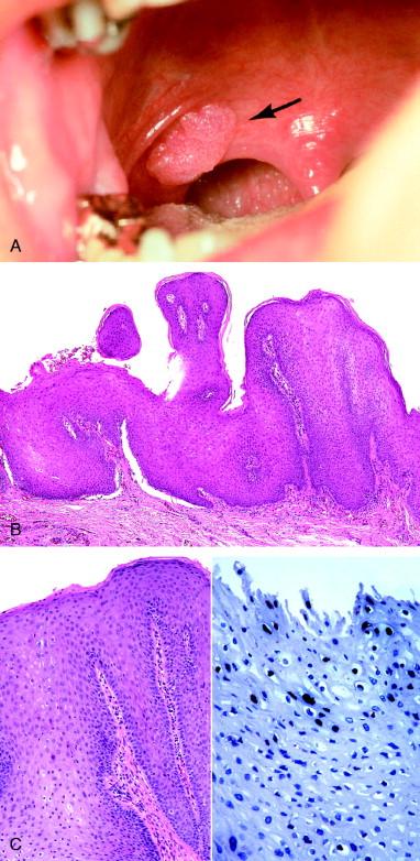 squamous papilloma and condyloma acuminatum