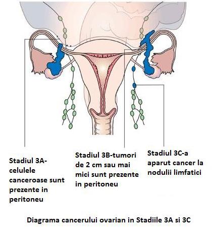 cancer ovarian stadiul 3 vindecat)