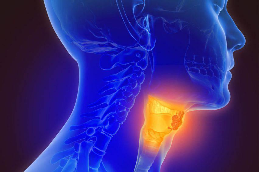 papilloma virus tumore alla gola)
