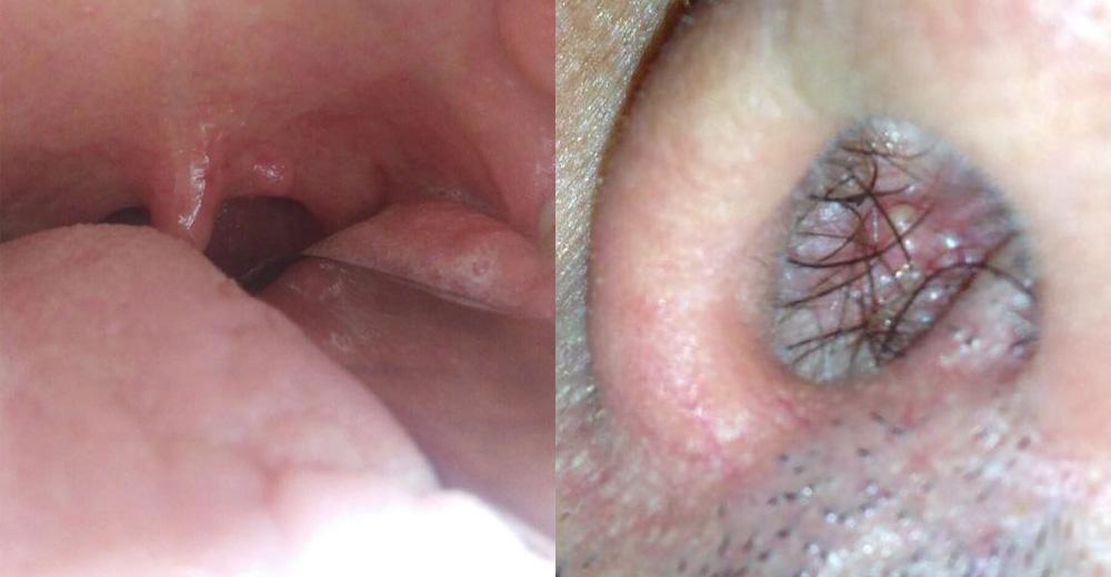 asportazione papilloma tonsillare)
