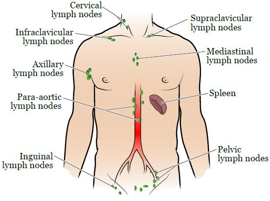 Thyroid cancer surgeries in cervical lymph node metastases