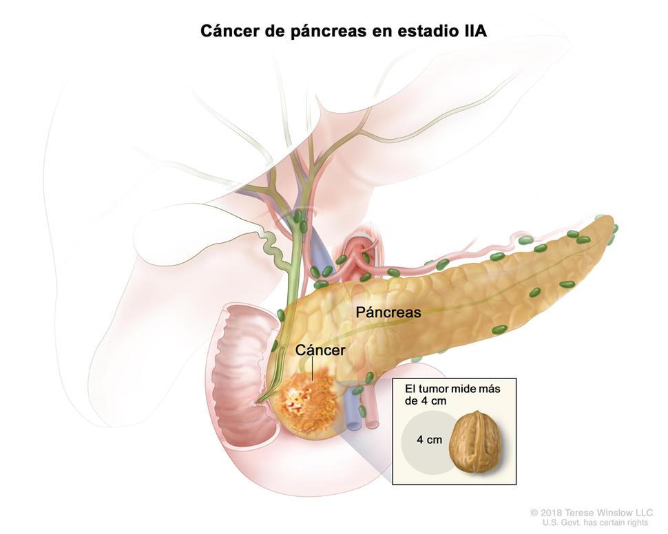 cancer pancreas metastasis pronostic)