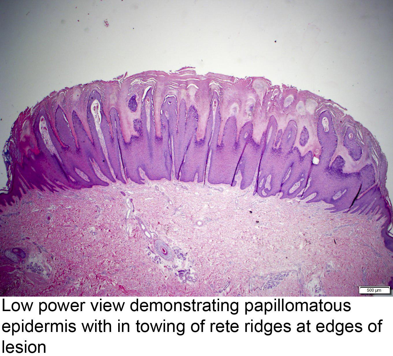 squamous cell papilloma and verruca vulgaris