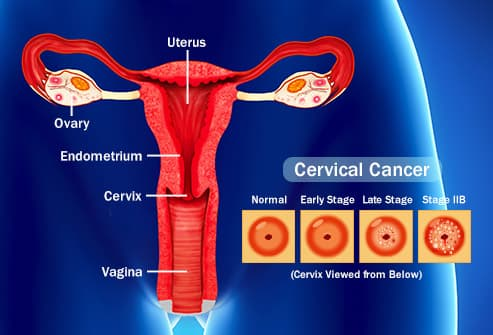 can hpv genital warts cause cervical cancer)