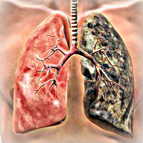 cancer bronhii simptome papilloma in breast treatment