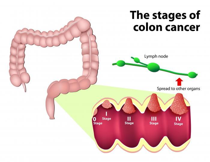 cancer colon pain)