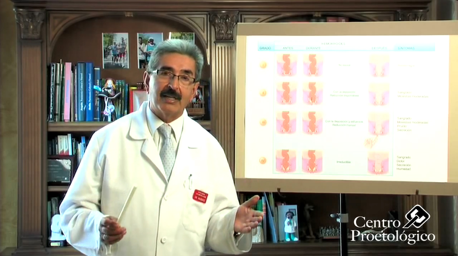 cancer de colon hemorroides
